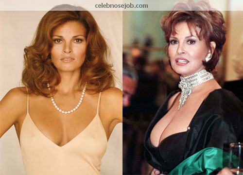 Raquel Welch's Breasts Before and After Life - or the Knife?