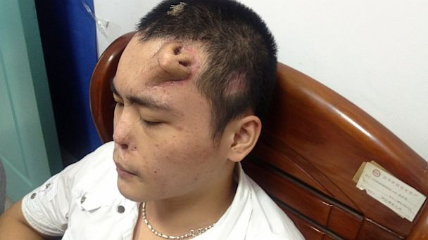 new nose grown on forehead of man in China