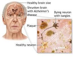 diagram of brain shrunken by Alzheimer's