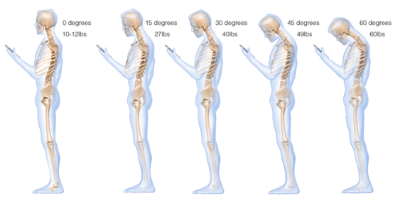 pictures of Text Neck - muscle strain from holding phone wrongly